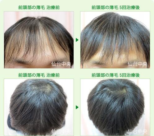 薄い 部 前 頭 頭頂部が薄い女性におすすめの髪型10選【つむじの薄毛を克服】
